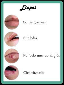 etapes herpes labial